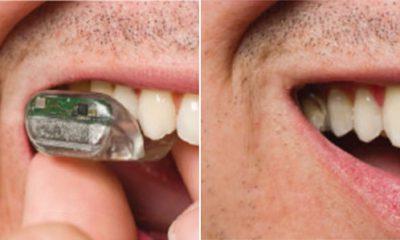 ¿Sabías que se puede oír con los dientes