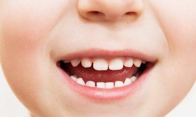 ¿Sabías que con dientes de leche se estudió la radiación?